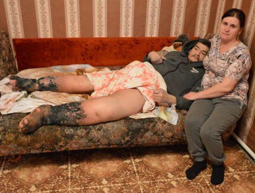«Гангрена безразличия»: заживо гниёт биробиджанский инвалид из-за отсутствия квалифицированной медпомощи
