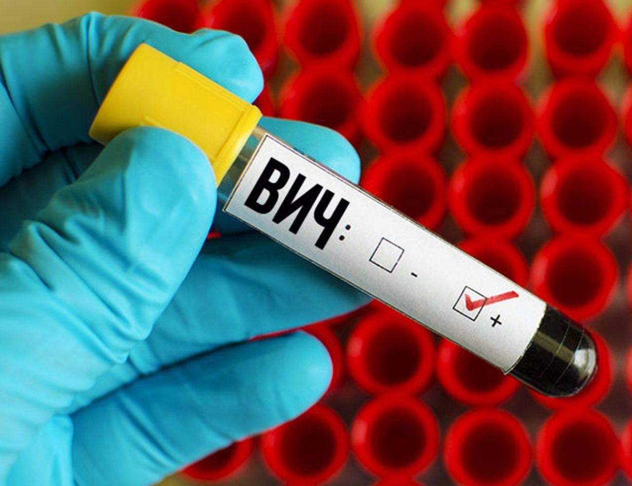 Россию признали лидером по скорости распространения ВИЧ в Европе